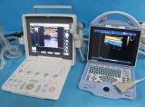 Ordinateur portable d'échographie portable Design humanisé couleur/utile l'échographie diagnostique Machine/Scanner -Mslcu36