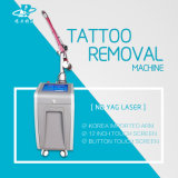 Máquinas del laser del retiro 1064nm del tatuaje del laser