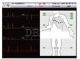 Large écran ECG de Holter d'électrocardiographe de la machine ECG de la Manche ECG de six fils