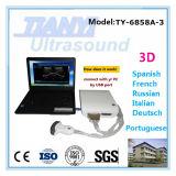 2017 nuovo tipo portatile scanner di ultrasuono