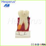 4: 1 onderwijst de TandStudie van de tandarts Tand het ModelModel van de Ziekte van Tanden