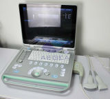 Máquina aprovada do ultra-som de Doppler da cor 3D de AG-Bu005 Ce&ISO