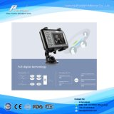 Ce Digital Scanner de ultra-som portátil Palmtop (WHYB4000)