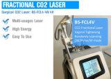 外科二酸化炭素レーザーシステム携帯用二酸化炭素外科僅かレーザーの処置機械