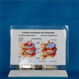 Modèle d'enseignement médical de squelette de la colonne vertébrale humaine (R020701)