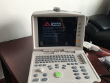 Ultrason portatif tenu dans la main de plein multiparamètre approuvé de Digitals de la CE