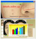 De Analysator van de Huid van de spiegel met 12 Megapixel