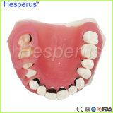 치과 치주병 이 모형/이 의학 모형 Hesperus