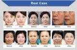 Corpo profissional do ultra-som do salão de beleza da beleza que Slimming a máquina de Hifu do elevador de face com Ce FDA