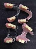 طقم أسنان قابل للنقل مرنة متحيّز