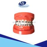 Uno mismo ortodóntico del producto de los materiales dentales que liga los corchetes