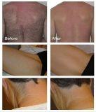 Precio caliente de la máquina del retiro del pelo del laser del diodo/del retiro del pelo del laser del diodo