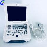 Medical numérique portable ordinateur portable en mode B Echo échographe