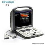 Sonoscape S6V 고명한 상표 최신 판매 의학 수의사 초음파 색깔 도풀러 초음파 기계 Portable