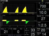 Hochauflösender 10.4inch TFT Bildschirmanzeige-Entlüfter-Maschinen-Sauerstoff-atmenmaschine