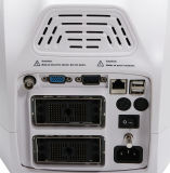 Scanner portatif basé sur PC neuf d'ultrason de 2016 plein Digitals - Stella