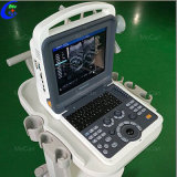 Bewegliche Ecografo 4D Farben-Doppler-Ultraschall-Maschine, beweglicher Echo-Ultraschall-Scanner