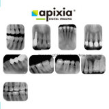 Apixia de radiographie dentaire numérique PSP Scanner