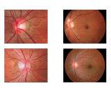 Qualidade superior do equipamento Oftálmica Non-Mydriatic China Câmara de retina