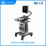 color Doppler de la carretilla 4D hecho en China Wuxi