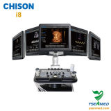 Hospital Médico Chison I8 carro móvil China máquina de ultrasonido Doppler Color