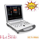 Самая низкая цена / ЦДК сосудов сердца ноутбука ультразвукового сканера .