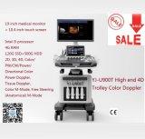4D-Тележка цветного доплеровского ультразвукового сканера со светодиодной подсветкой