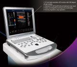 Ultrasonido claro de alta resolución Doppler de la imagen