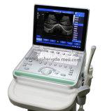 Scanner de ultra-som de máquina de ultra-som de alta resolução de 15 polegadas com imagem cristalina