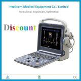 Huc-300セリウムISOの携帯用4Dカラー超音波の診断システム