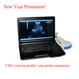 마이크로 Convex Probe (RUS-9000F)를 가진 10 인치 Laptop Ultrasound Scanner - Fanny