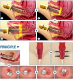 Draagbaar Verwaarloosbaar Vaginaal het Aanhalen van de Laser van Co2 Medisch Hulpmiddel