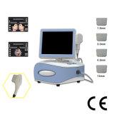 Hifu Liposonix Fokus-Ultraschall Hifu Karosserien-Form-Maschine (hifu04)