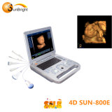 Big Promotion 15 pouces LCD 3D/4D ultrasound Sun-800e/4D ultrasound