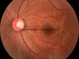 Câmera Retinal da câmera Não-Mydriatic do fundo