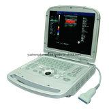 Machine approuvée d'échographie-Doppler de couleur de la CE (YSD516)