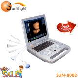 Medical numérique portable Échographie 3D Sun-800D