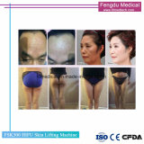 Ultra-som focado High-Intensity Hifu para Anti-Wrinkle e modelagem do corpo