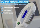 Equipamento permanente da remoção do cabelo do laser do IPL RF