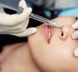 Bouchon de remplissage d'acide hyaluronique injectable par voie cutanée pour nez
