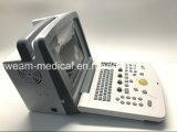 Scanner di ultrasuono di Digitahi