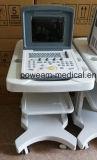 충분히 LCD 디스플레이 디지털 휴대용 수의 초음파 (WHYC30P 수의사)
