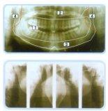 De panoramische Machine van de Röntgenstraal van Cr van de Hoge Frequentie