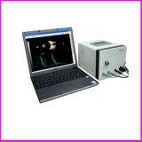 Equipamento Oftálmico de Qualidade Superior China Ophthalmic Ab Scan (CAS-2000B)