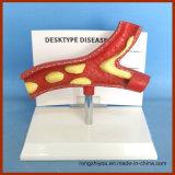 Type pathologique modèle anatomique de bureau d'artère de la maladie
