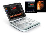 Tipo Laptop escáner 3D / 4D Color Doppler ultrasonido con pantalla LCD
