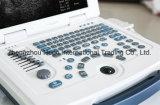 De digitale Medische Draagbare Ultrasone klank van de Apparatuur B/W (PK-UC500)