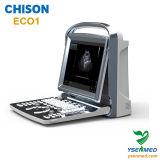 Portable Transvaginal famoso do varredor do ultra-som do Bw da qualidade superior de Chison Eco1 do tipo