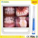 """O Sistema de Câmara Oral Dental com 17"""" Monitor Dentária"""