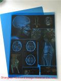 의학 엑스레이 파란 필름, 필름을 인쇄하는 Laser